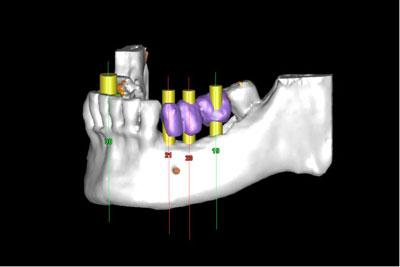 implantes-dentales-sin-cirugia-las-rozas-majadahonda