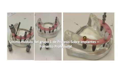 Último módulo del grupo 1 de Prótesis Sobre Implantes