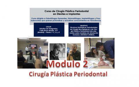 Modulo2 del curso de Cirugía Plástica Periodontal