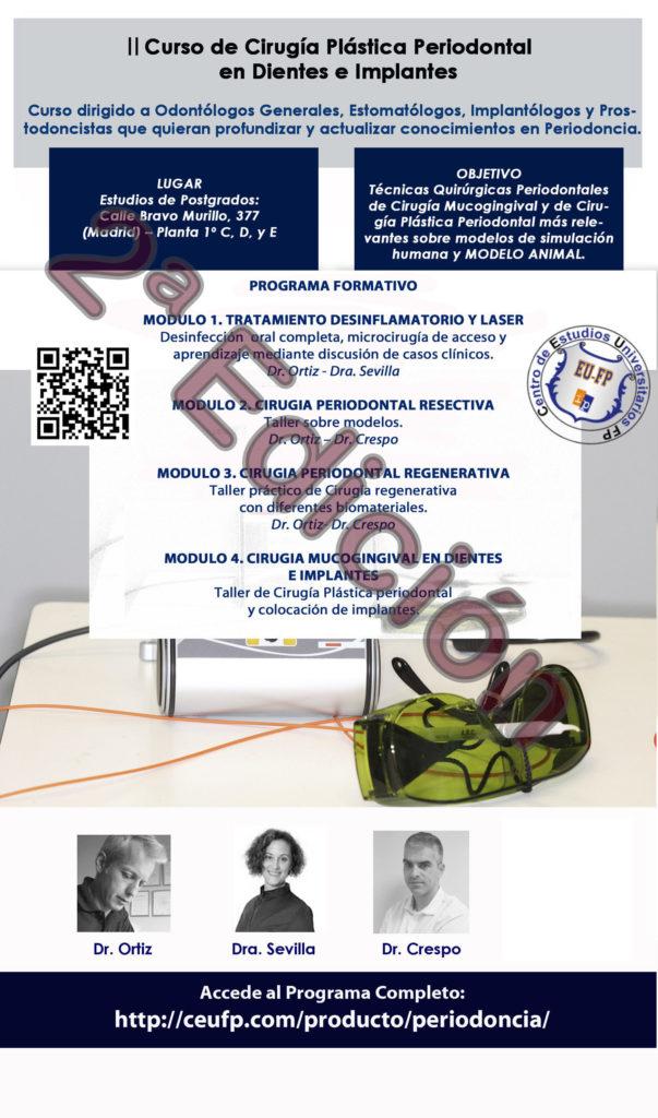 II Curso de Cirugía Plástica Periodontal en Dientes e Implantes 2017