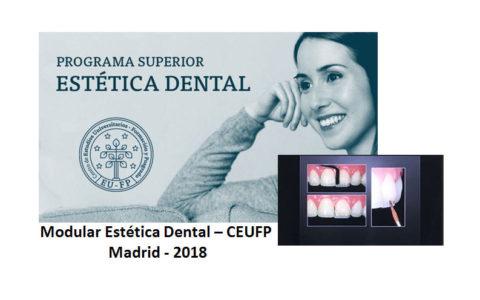 Comienzo Modular de Estetica Dental CEUFP – 2018 – Madrid
