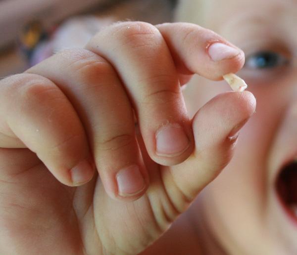 Avulsión. Clínica dental en Las Rozas