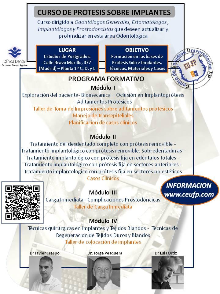 Protesis sobre implantes-Clinica Dr. Crespo