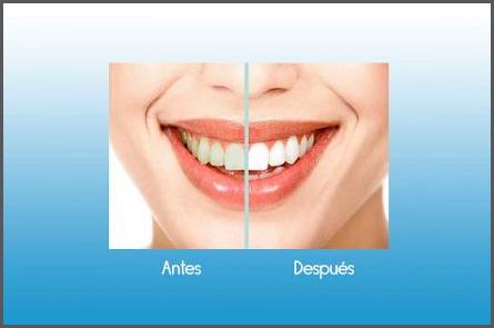 blanqueamiento-dental-las-rozas-majadahonda