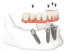 implantes-dentales-allonfour-las-rozas-majadahonda