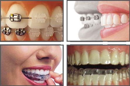 ortodoncia-en-las-rozas-y-majadahonda