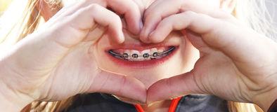 Tratamiento-de-ortodoncia-las rozas-majadahonda