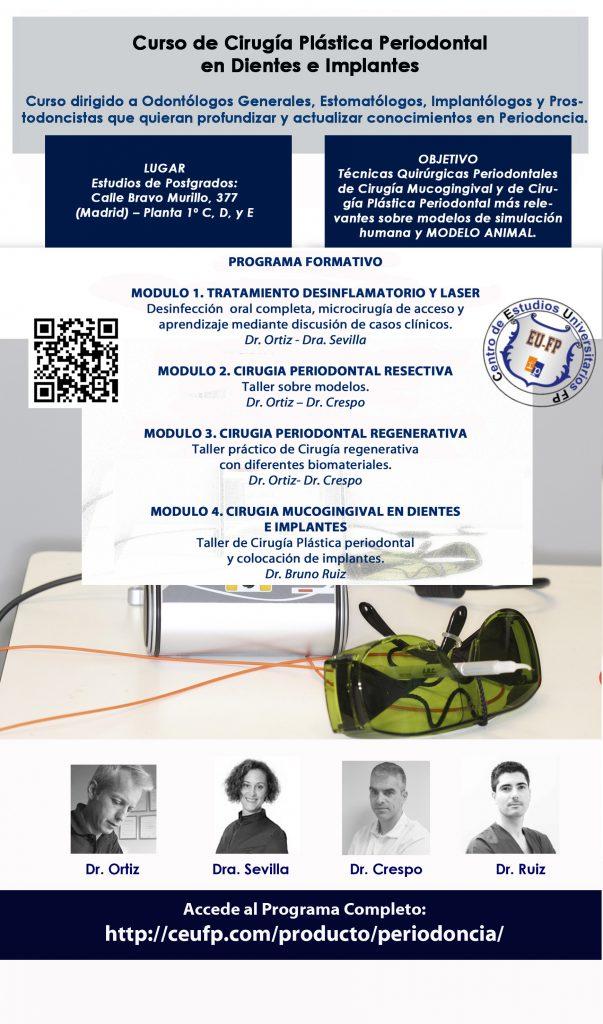 Curso de Cirugía Plástica Periodontal en Dientes e Implantes - Madrid