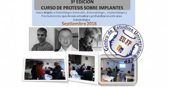 Curso Prótesis Sobre Implantes – 3ª Edición