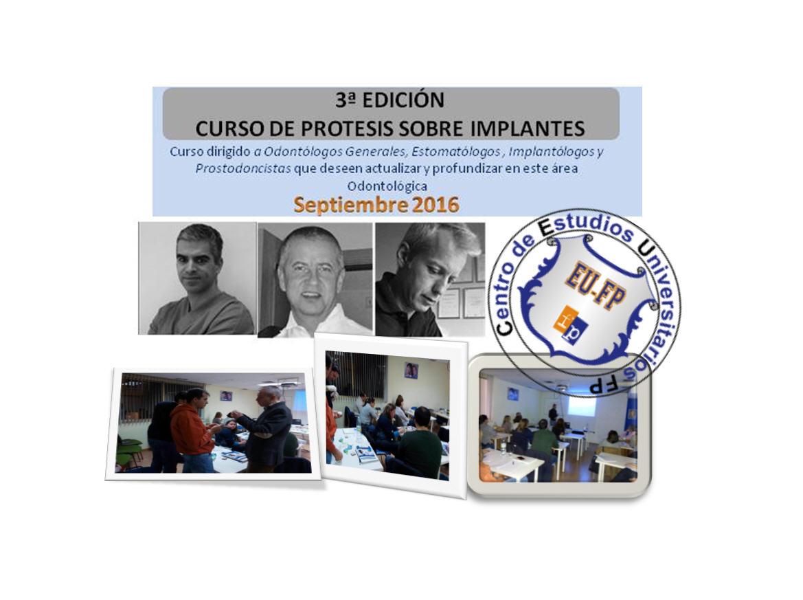 Protesis-Sobre-Implantes-Septiembre-3ª-Edicion