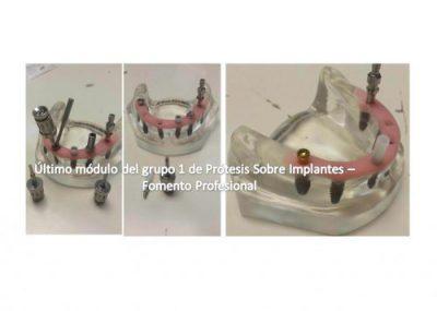 Último módulo del grupo 1 de Prótesis Sobre Implantes 2016