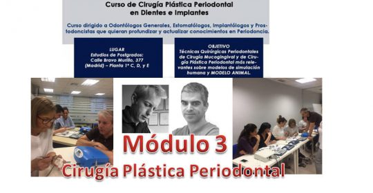 Cirugía Plástica Periodontal- Módulo 3