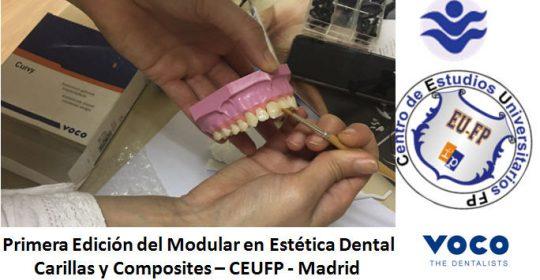Primera Edición del Modular en Estética Dental   Carillas y Composites – CEUFP – Madrid