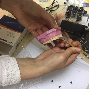 Primera edición del modular en estética dental - carillas y composites-CEUFP-5