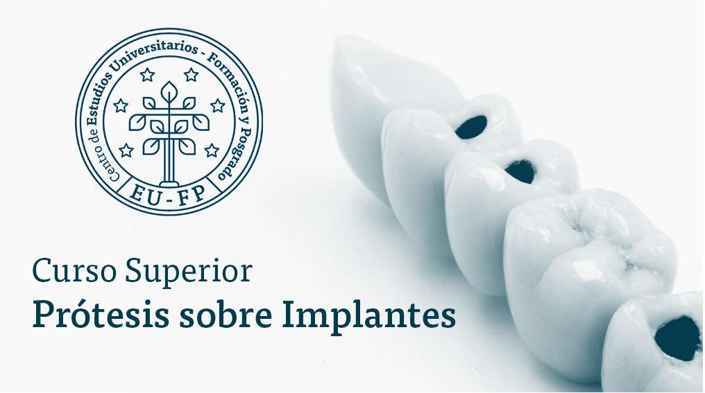 Curso Protesis sobre Implantes quinta edicion 2018 - CEUFP - Madrid