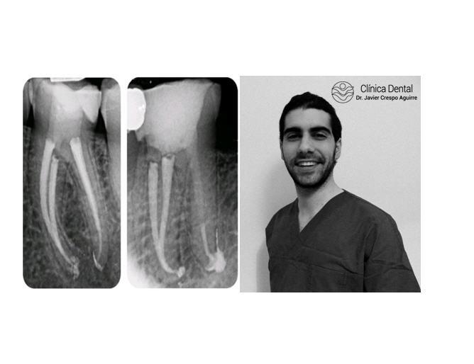 Dr Vincenzo Trentadue-Clinica dr. Crespo-participa en el estudio de investigación Máster Endodoncia y Cirugía Periapical UAX en 2018