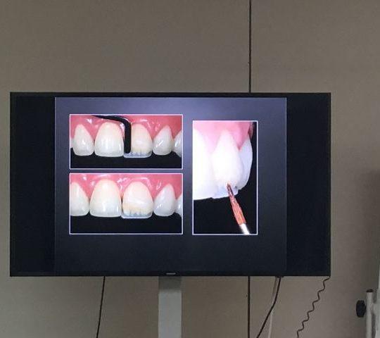 Momentos Modular de estetica dental - 2018 CEUFP - 2