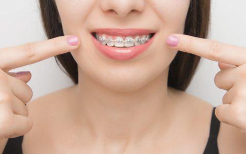 Pautas de mantenimiento de ortodoncia durante el confinamiento por el COVID-19