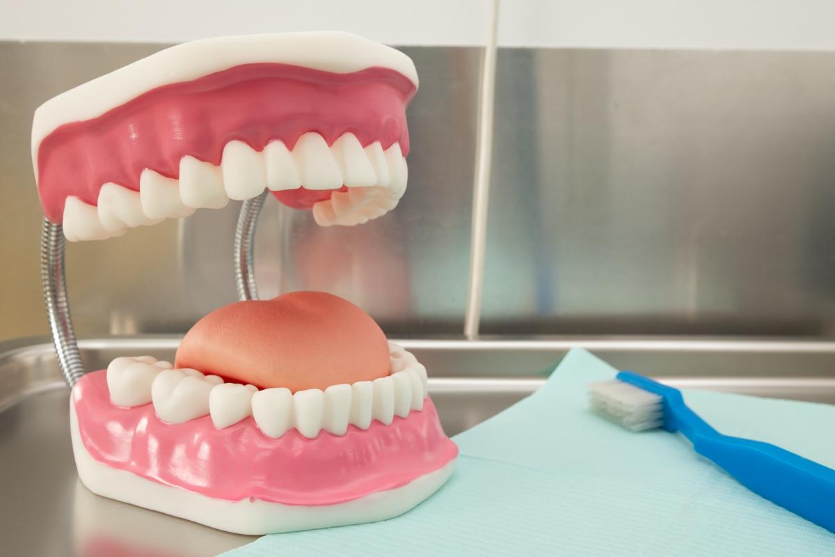 Blanqueamiento dental Las Rozas - Dr. Crespo