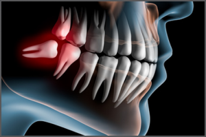 Cirugía Oral y Maxilofacial en las Rozas y Majadahonda